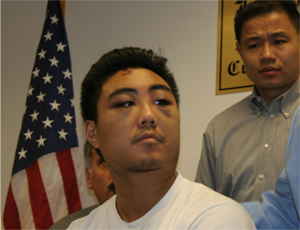 Reynold Liang one of the Asian youths attacked. (Photo by Maurice Pinzon)